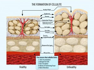 Cause-and-Formation-of-Cellulite